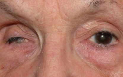 The Symptoms, Causes, and Prevention of Ophthalmoplegia